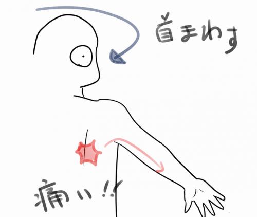 首を回すと肩甲骨が痛いの図