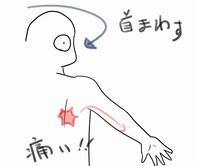 肩 痛い 首
